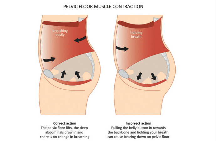The importance of a pelvic floor makeover